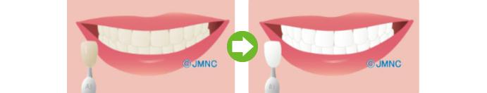 ホワイトニング(審美歯科治療)とは
